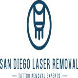 San Diego Laser Tattoo Removal